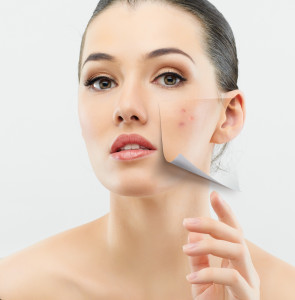 Woman_Acne Treatment